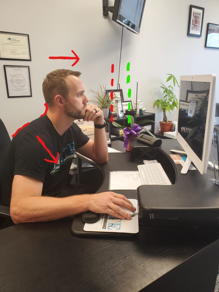 Showing forward head posture with neck extension at a computer.