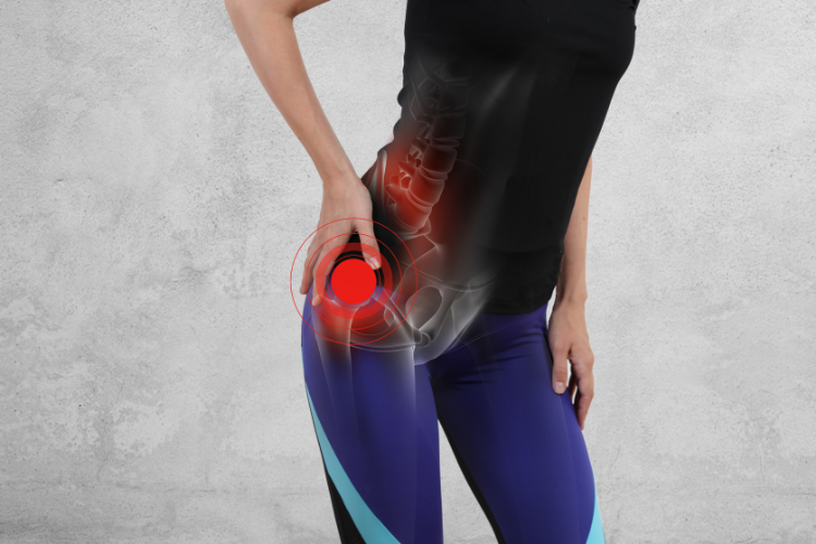A woman with hip pain