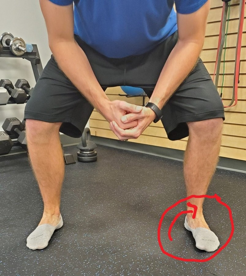 Foot rolling out during a squat.