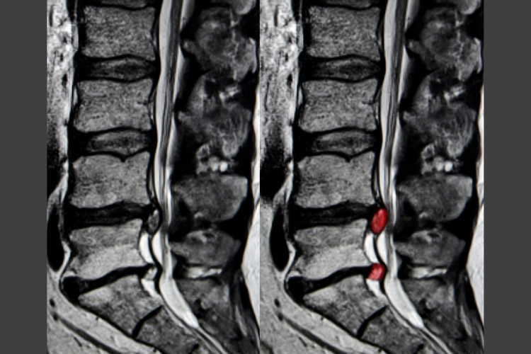 An MRI showing an L4/L5 and L5/S1 disc herniation