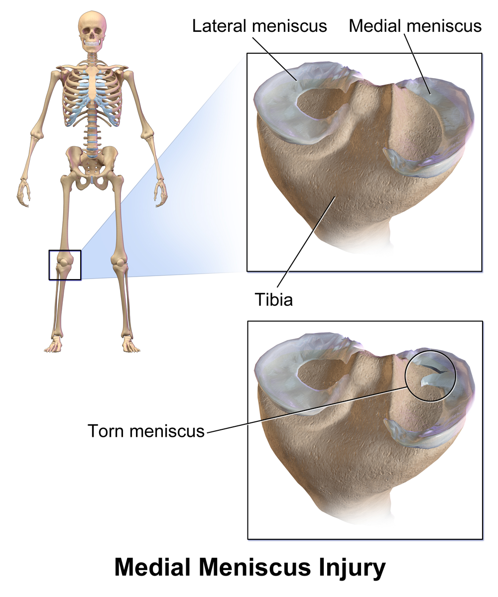 An image showing a meniscus tear